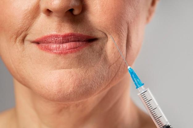 Mulher sorridente e idosa usando injeção para as rugas da boca