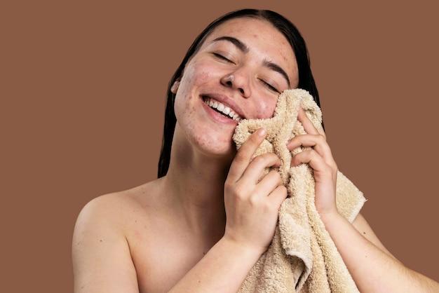 Mulher sorridente mostrando sua acne com confiança