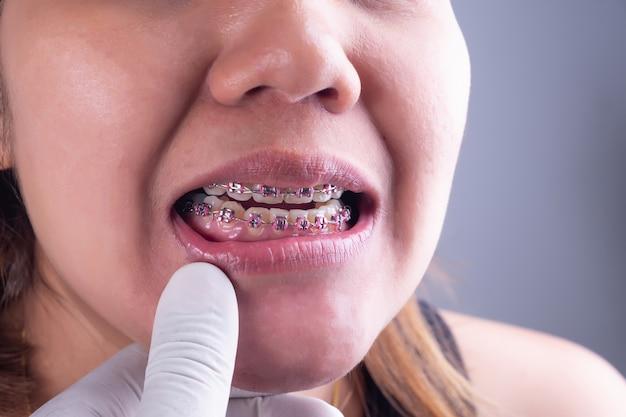 Mulher, sorrizo, mostrando, dela, dentes