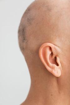 Mulher vista lateral com câncer de pele