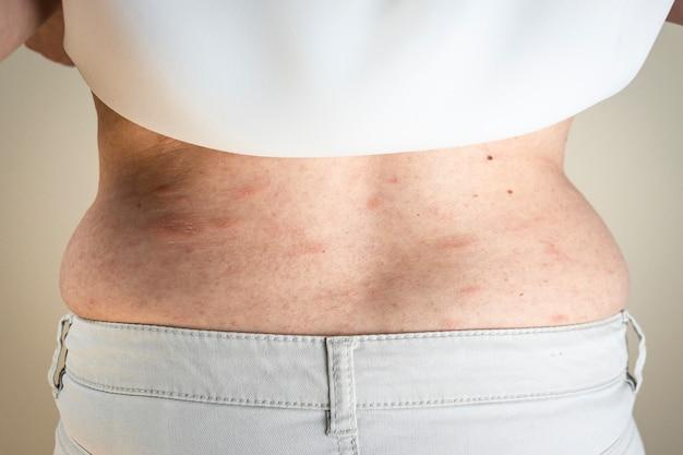 Mulheres com sintomas de urticária com coceira ou reação alérgica na pele