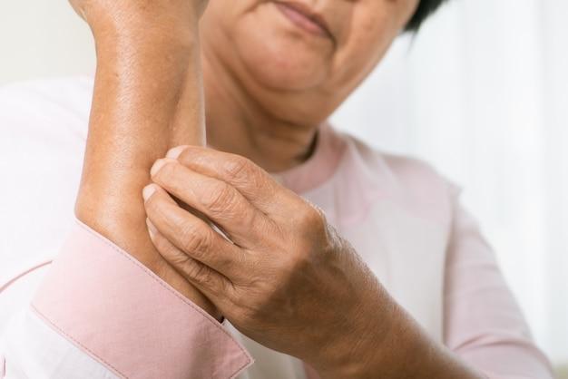 Mulheres idosas coçam a coceira no braço do eczema