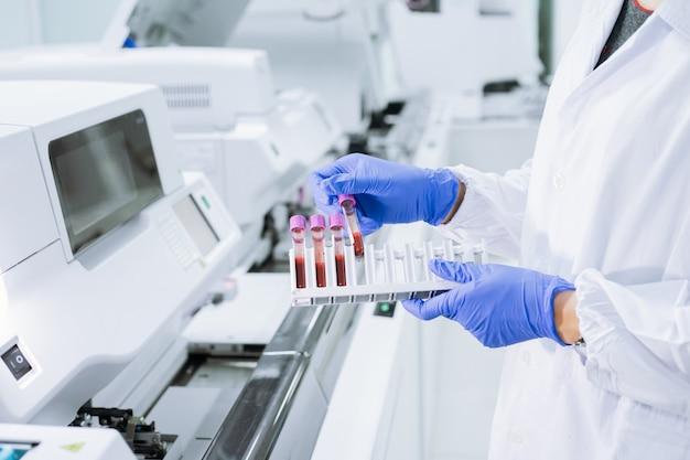 O cientista usa uma luva segurando o tubo de ensaio no suporte para amostras para verificar a qualidade da amostra.