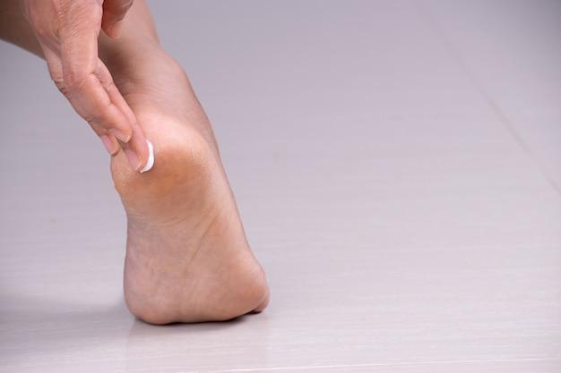 O close up disparou do pé da jovem mulher que aplica o creme hidratando do pé.