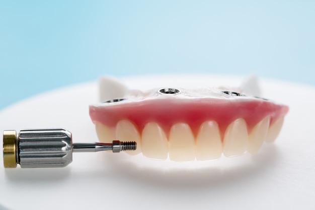 O close up / implantes dentários apoiou a overdenture no fundo azul / parafuso retido / restaurações de implante.