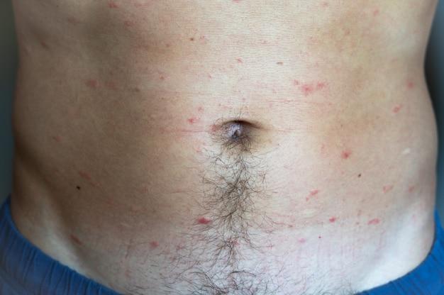 O corpo de um homem adulto apresenta manchas vermelhas e erupção na pele com bolhas de varicela ou vírus varicela zoster. complicações médicas após a doença.