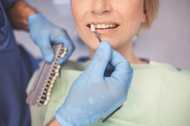 O dentista verifica o nível de clareamento dos dentes do paciente com a cor do dentista no consultório odontológico