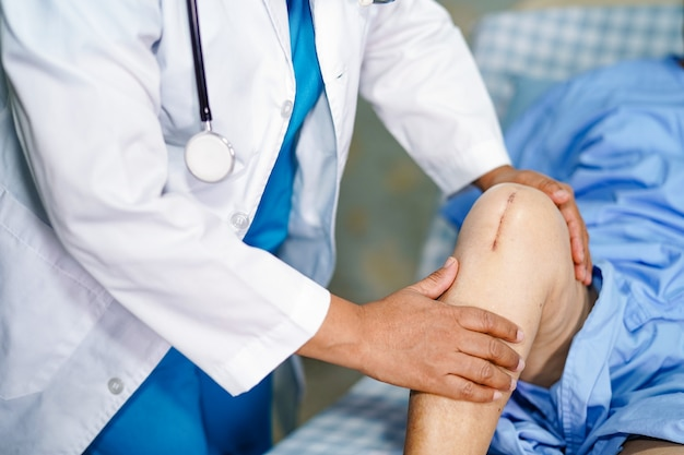 O doutor verifica o paciente superior asiático da mulher cicatrizes a substituição total cirúrgica da articulação do joelho.