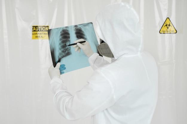 O epidemiologista desenha um marcador na lesão pulmonar de raios-x covid-19. conceito de coronavírus
