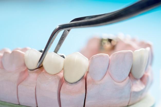 O equipamento de odontologia para implantes de coroas e pontes protéticas / de close up / protético ou protético / de ponte e o modelo expressam a restauração de correção.