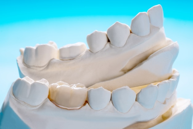 O equipamento para close-up / prótese ou prótese / coroa e ponte e o modelo expressam a restauração de correção.
