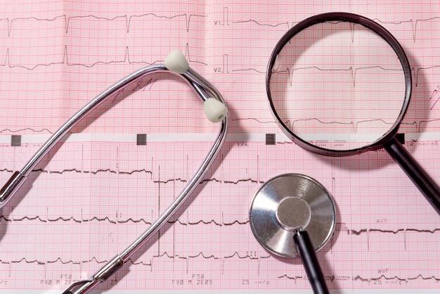 O estetoscópio e a lupa estão na folha com o eletrocardiograma. conceito médico.