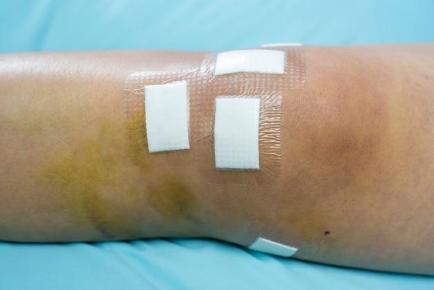 O gesso fecha a ferida no joelho, causando cirurgia do ligamento cruzado posterior (pcl), conceito médico e de saúde