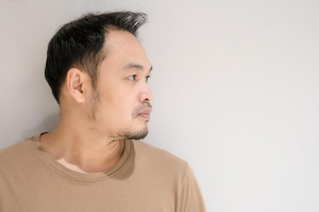 O homem está ficando careca. homens asiáticos com problemas de cabeça careca