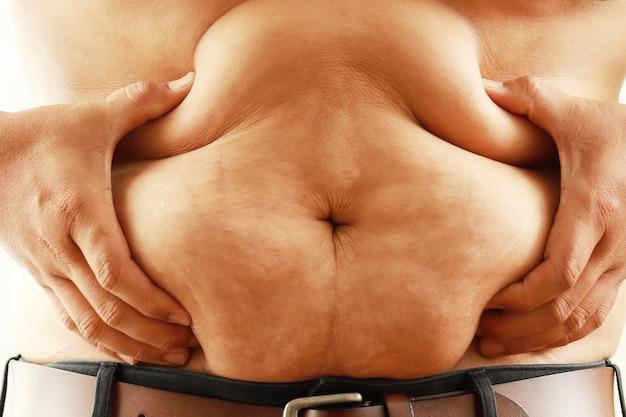 O homem gordo e corpulento segurou a barriga com as mãos e apertou a gordura.