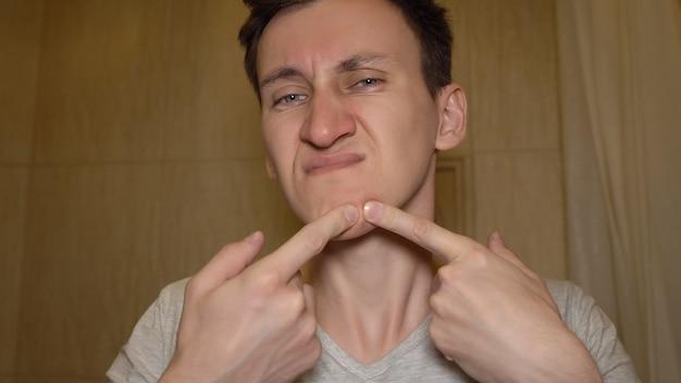 O homem tenta espremer uma espinha no rosto.