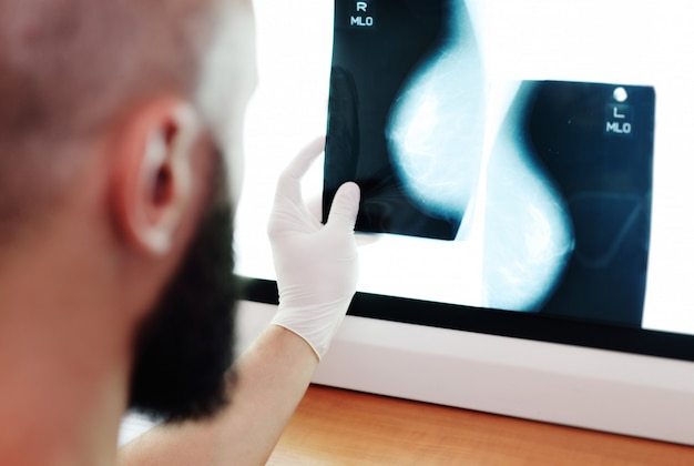 O médico olha para uma foto ou mamografia, o resultado de um exame de raio-x das glândulas mamárias