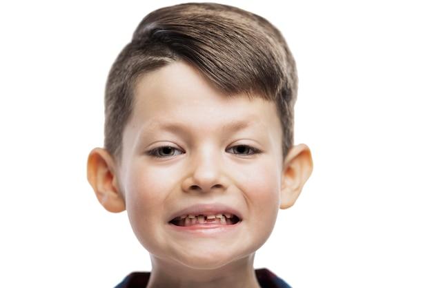 O menino que perdeu o dente da frente está sorrindo. cuidado dental. fechar-se. isolado na parede branca.