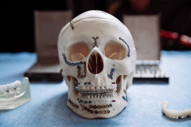 O modelo do crânio para cirurgia maxilofacial e odontologia