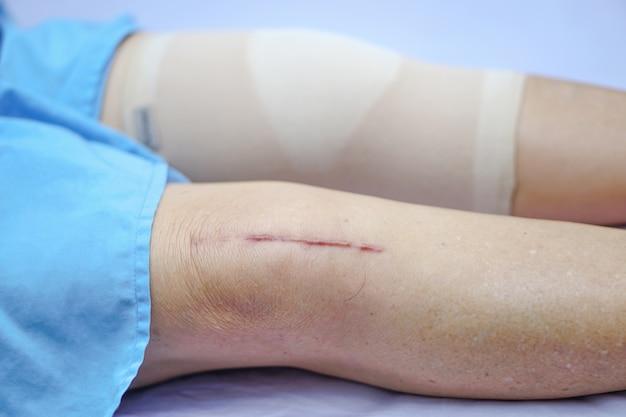 O paciente asiático ou idoso asiático da mulher da senhora idosa mostra-lhe a articulação do joelho total cirúrgica das cicatrizes.