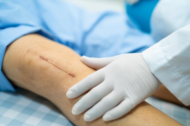 O paciente sênior asiático da mulher mostra suas cicatrizes a substituição total cirúrgica da articulação do joelho.