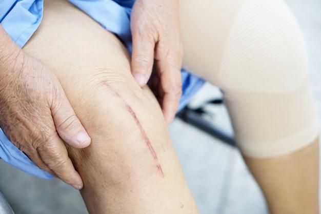 O paciente sênior idoso da mulher adulta da senhora mostra-lhe a substituição total cirúrgica da articulação do joelho das cicatrizes.