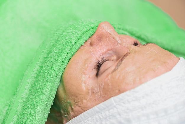 O processo de amolecimento da máscara enzimática com uma toalha úmida.