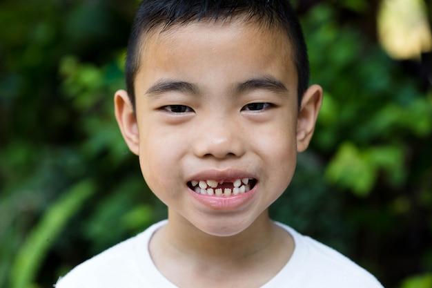O rapaz asiático com dente quebrado no jardim