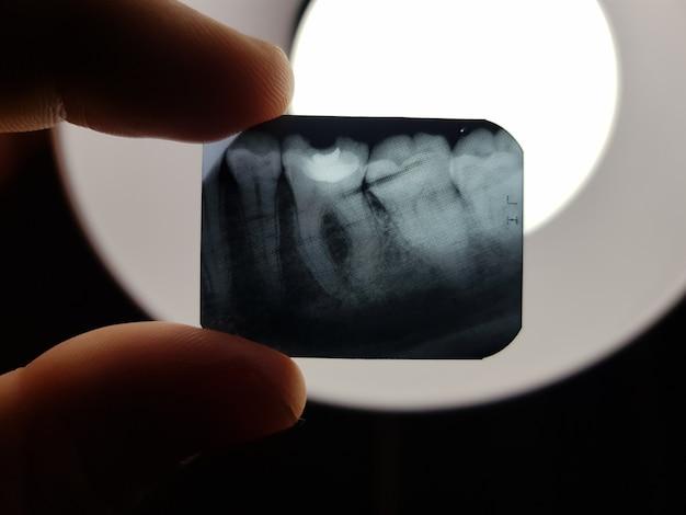 O resultado da radiografia dos dentes da cavidade oral do paciente a ser tratado