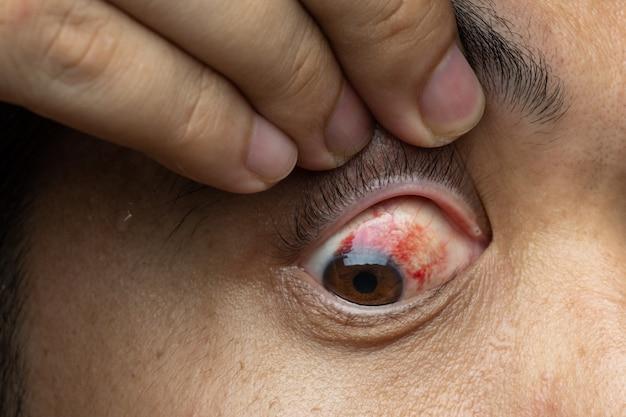 O sangue no olho de uma hemorragia subconjuntival geralmente desaparece dentro de uma semana ou duas