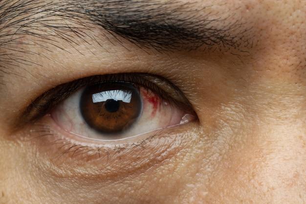O sangue no olho de uma hemorragia subconjuntival geralmente desaparece