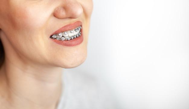 O sorriso de uma jovem com aparelho nos dentes brancos. endireitamento de dentes. maloclusão. cuidado dental.