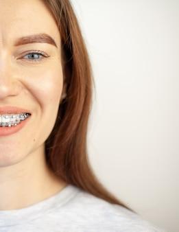 O sorriso de uma jovem com aparelho nos dentes brancos.