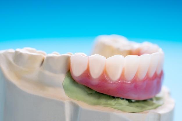 O trabalho de implante dentário está concluído e pronto para uso / pilar temporário para implante dentário