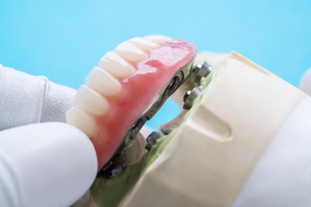 O trabalho de implante dentário está concluído e pronto para uso.