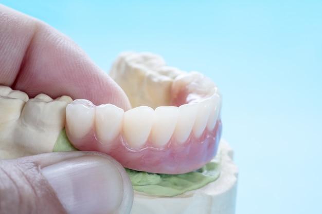 O trabalho do implante dentário está concluído e pronto para usar o pilar temporário do implante dentário