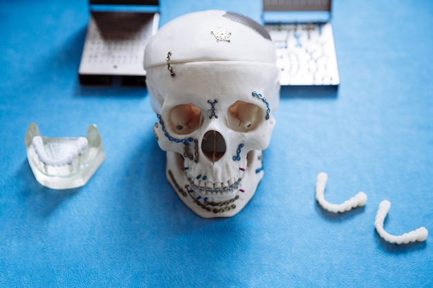 Odelo do crânio para cirurgia maxilofacial e odontologia encontra-se na mesa com placas aparafusadas.