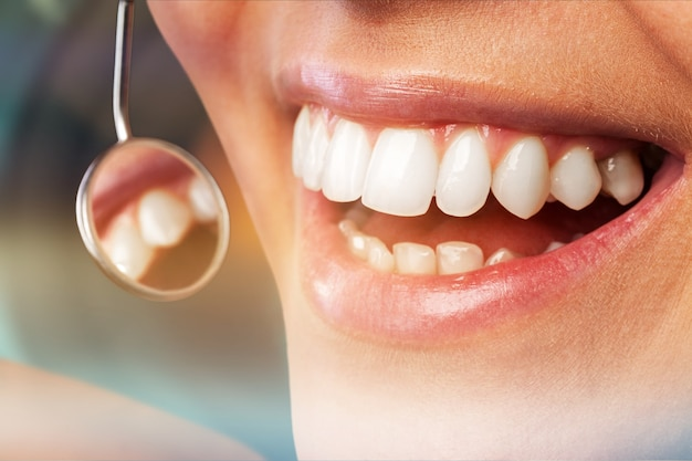 Odontologia periodontal adolescente atraente linda garota clareando