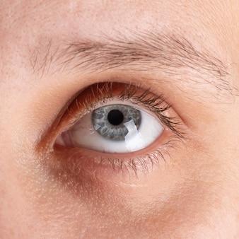 Olho com diagnóstico de ceratocone, closeup
