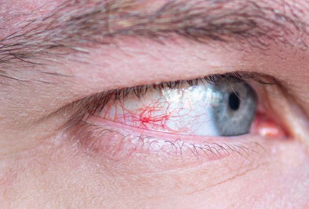 Olho de close-up com capilar vermelho injetado e veias