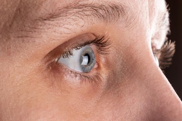 Olho de mulher com distrofia corneana, ceratocone, afinamento da córnea.