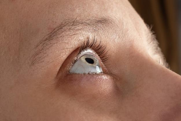 Olho de mulher com distrofia da córnea, ceratocone, afinamento da córnea.