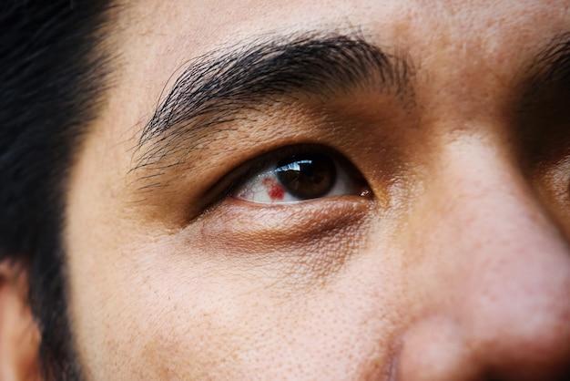Olho injetado vermelho em um homem asiático de meia idade
