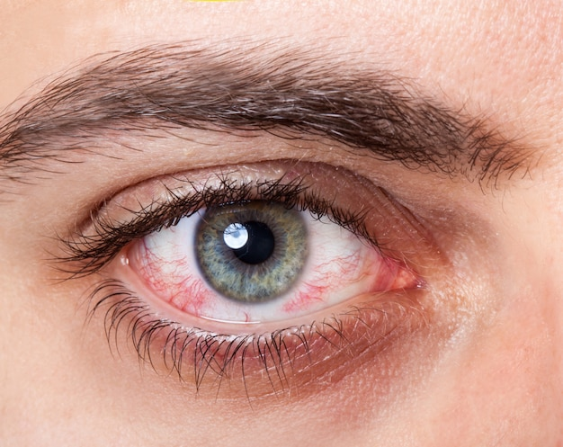 Olho injetado vermelho irritado