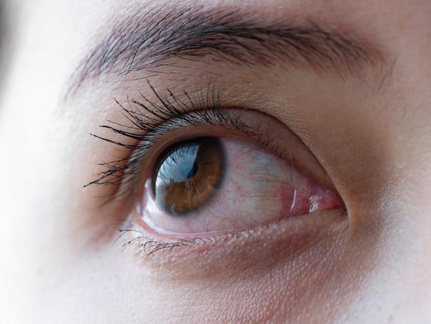 Olho vermelho de mulher, olhos de conjuntivite ou depois de chorar