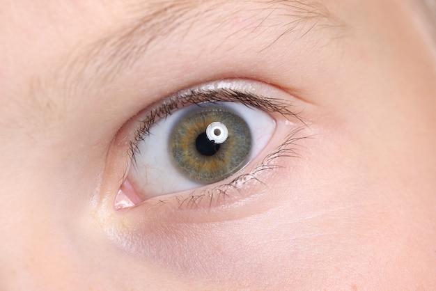Olhos de criança bem abertos com sobrancelha e manchas na pele.
