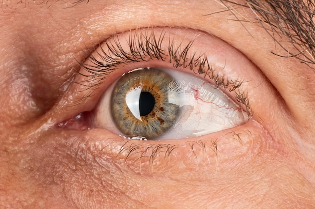 Olhos de pessoa idosa afinando da córnea ceratocone distrofia corneana close up