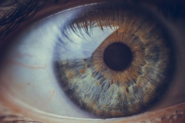 Olhos macro com rebentamento de vasos sanguíneos vermelhos.