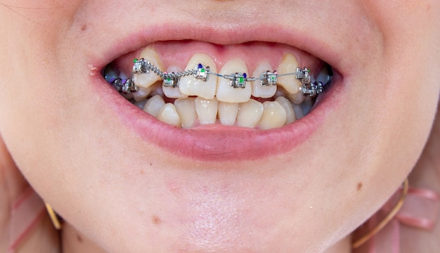 Os aparelhos na mandíbula superior estão localizados próximos, você pode ver que os dentes ficam tortos e precisam de aparelhos para alinhar os dentes.