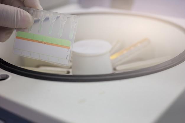 Os cientistas seguram gel para testar a compatibilidade do sangue.